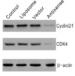 cyclin D1 antibody western blot Santa Cruz Biotechnology