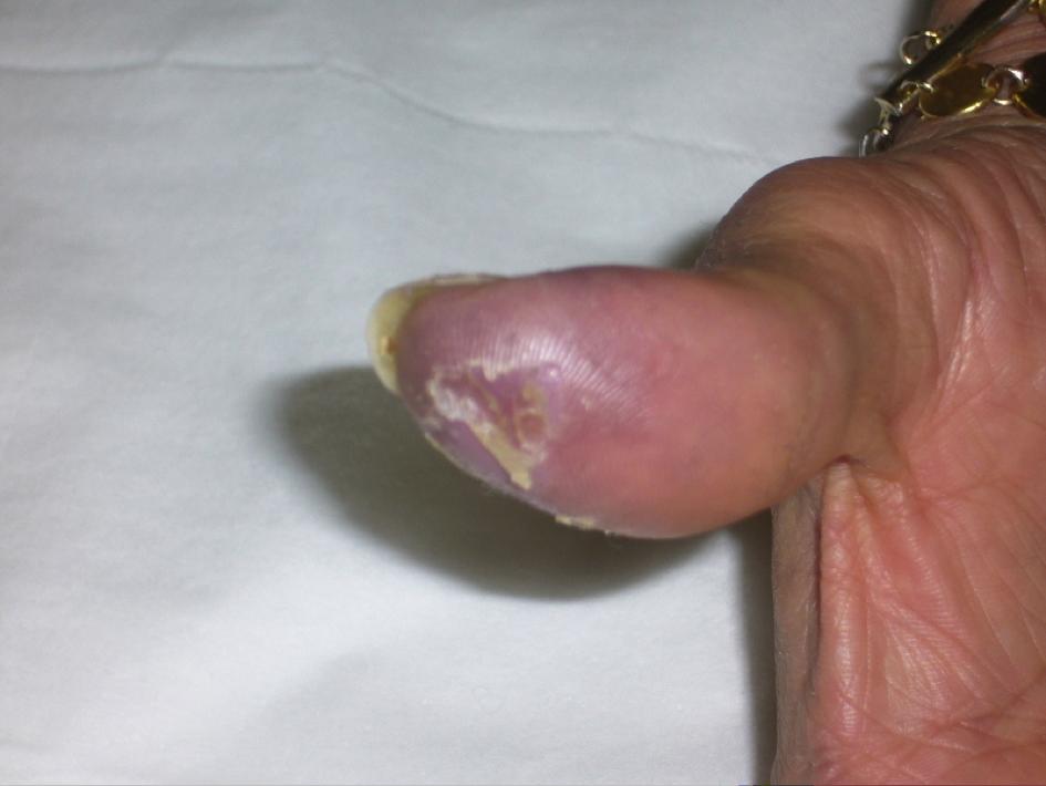 Artérites au cannabis : trois nouveaux cas Figure 1