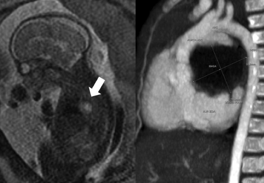 Tumores cardíacos en la edad pediátrica Figura 1