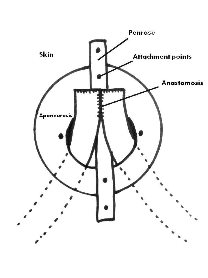 Monitoring And Manipulating Small Bowel Anastomosis Using A