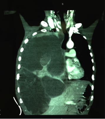 Coexistence of Neurofibromatosis Type-1 and Primary Pulmonary Sarcoma: A Case Report and Review of the Literature figure 4