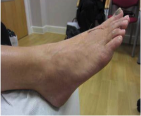 The geko device: a novel treatment for the reduction of post-operative swelling following forefoot surgery  figure 2