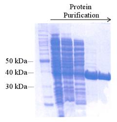 Purificación de proteínas  Figura 10