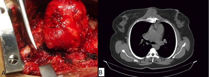 Reconstruction technique applicable in the surgery of sternal primary malignancy  figure 1