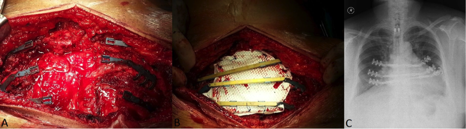 Reconstruction technique applicable in the surgery of sternal primary malignancy  figure 3