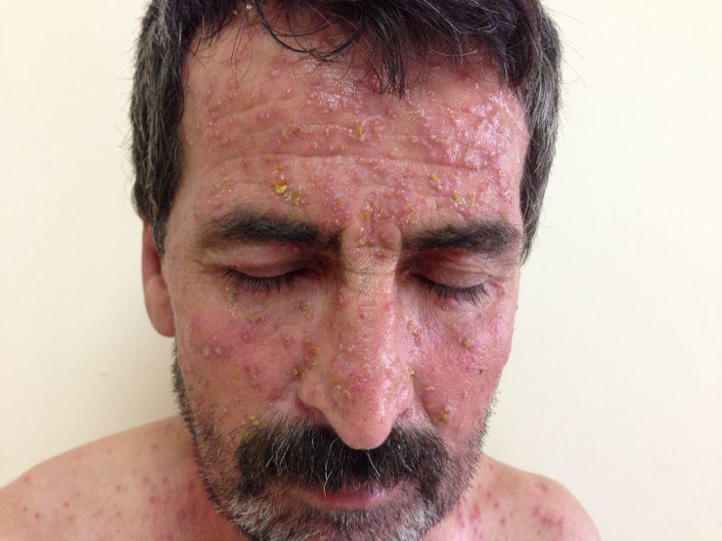 Eosinophilic Pustular Dermatosis With Concomitant