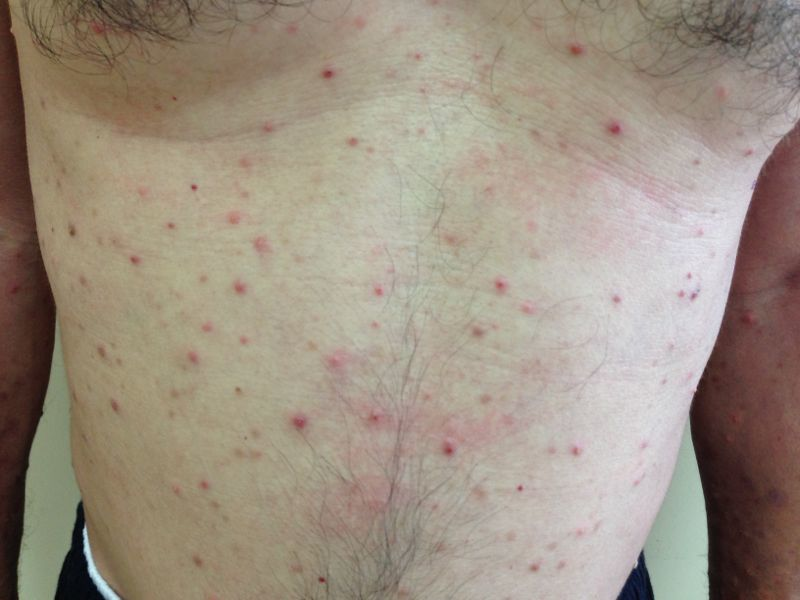 Eosinophilic pustular dermatosis with concomitant polycytemia vera: a case report figure 2