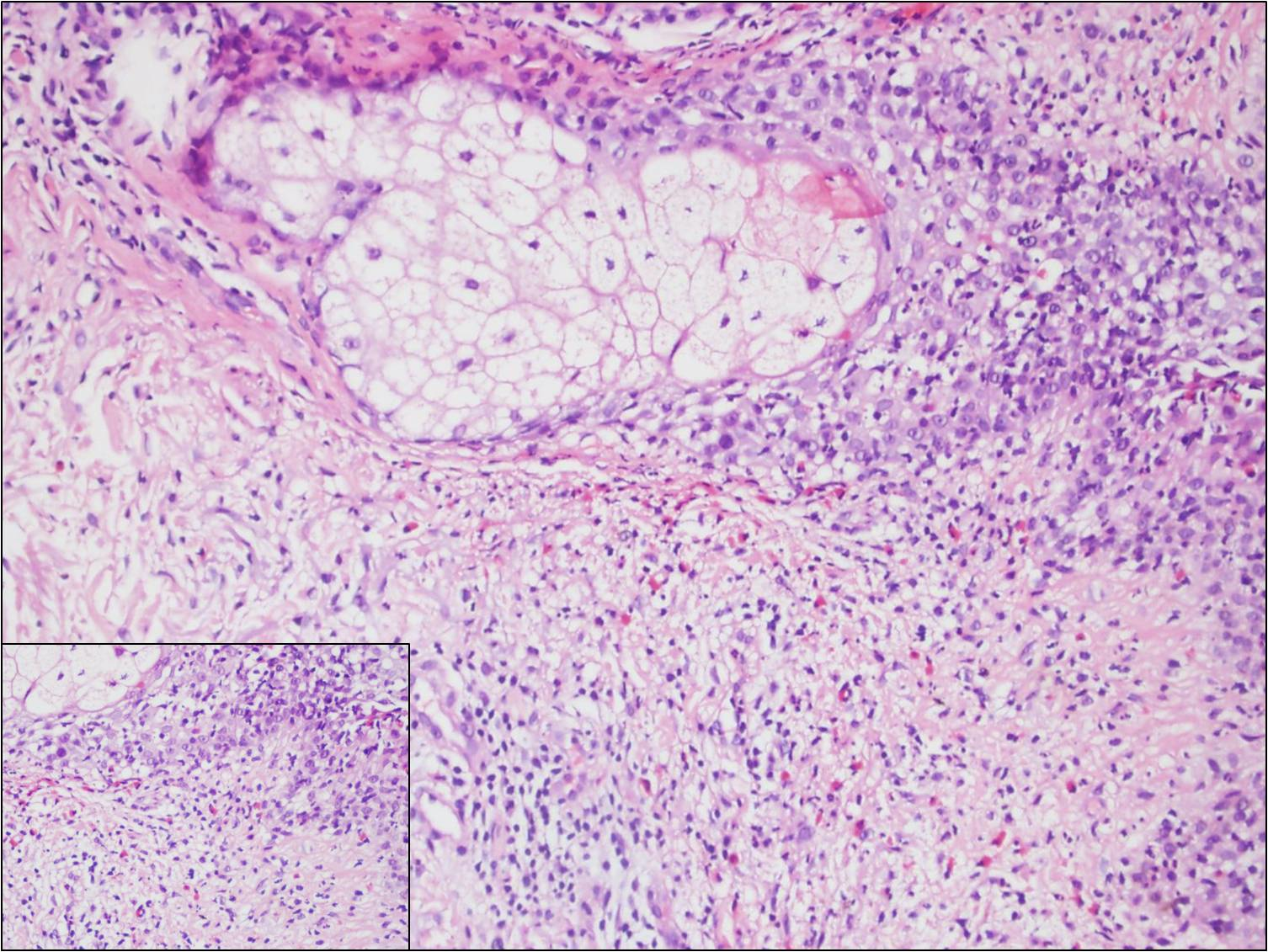 Eosinophilic pustular dermatosis with concomitant polycytemia vera: a case report figure 3