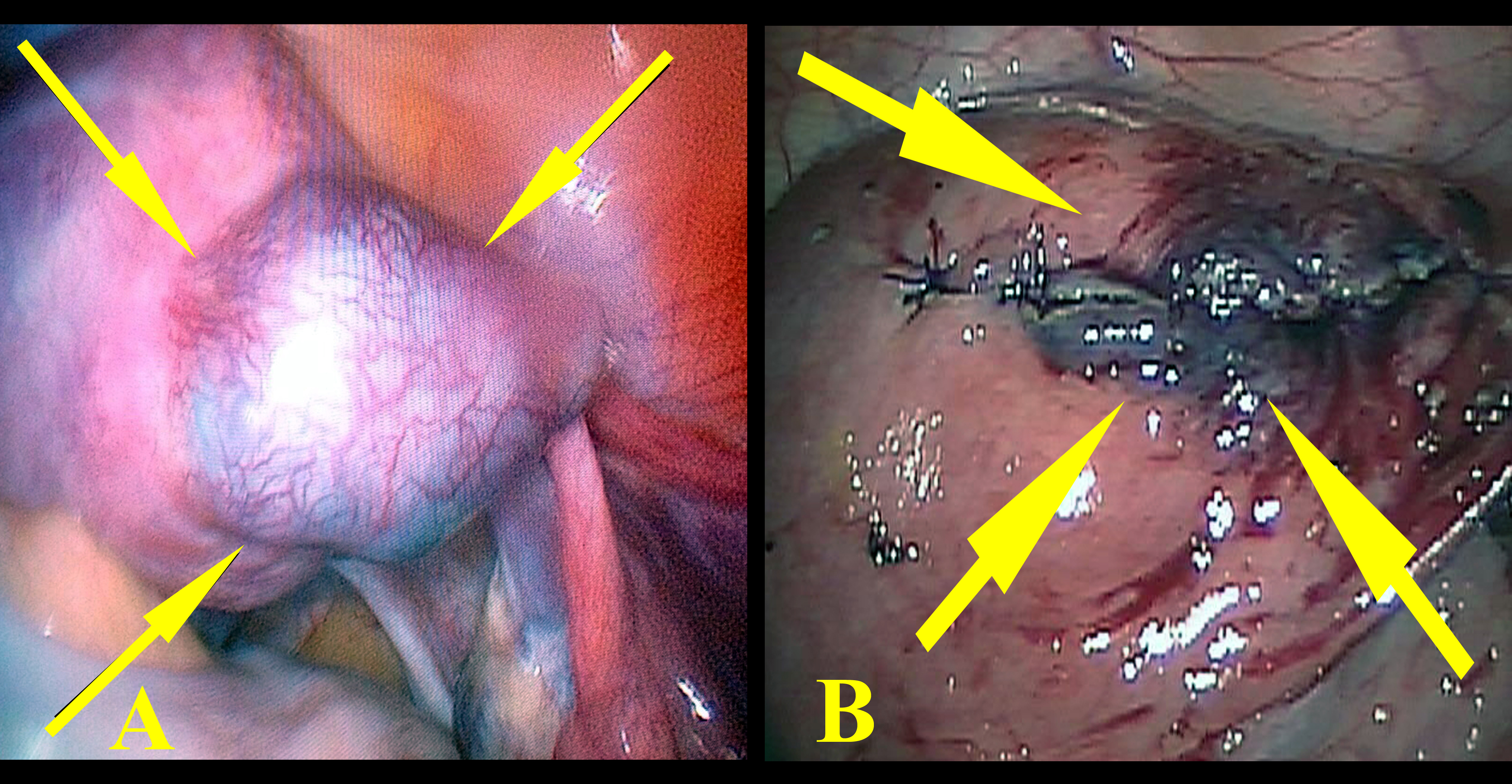 Successful management of cornual ectopic pregnancy with laparoscopy figure 2