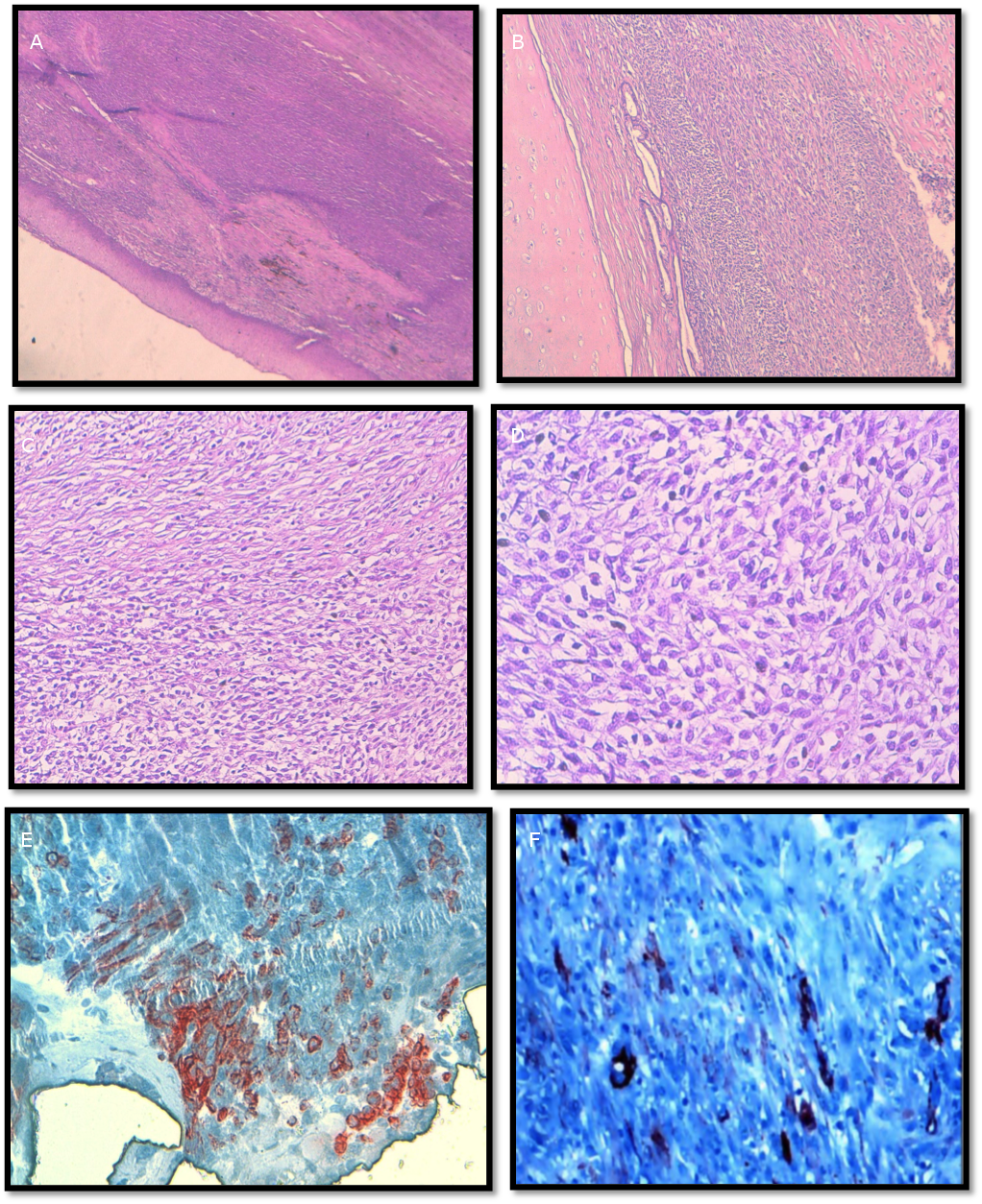 Leiomyosarcoma of larynx: two new cases report and review of literature figure 2