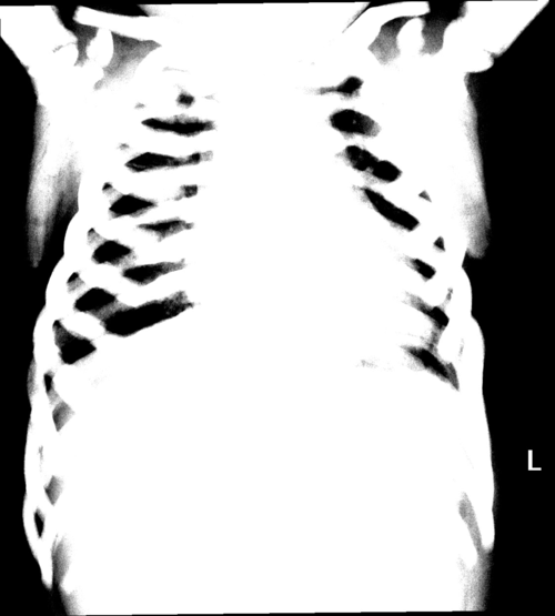 An autosomal recessive variant of osteopetrosis in a 6-year-old boy figure 1