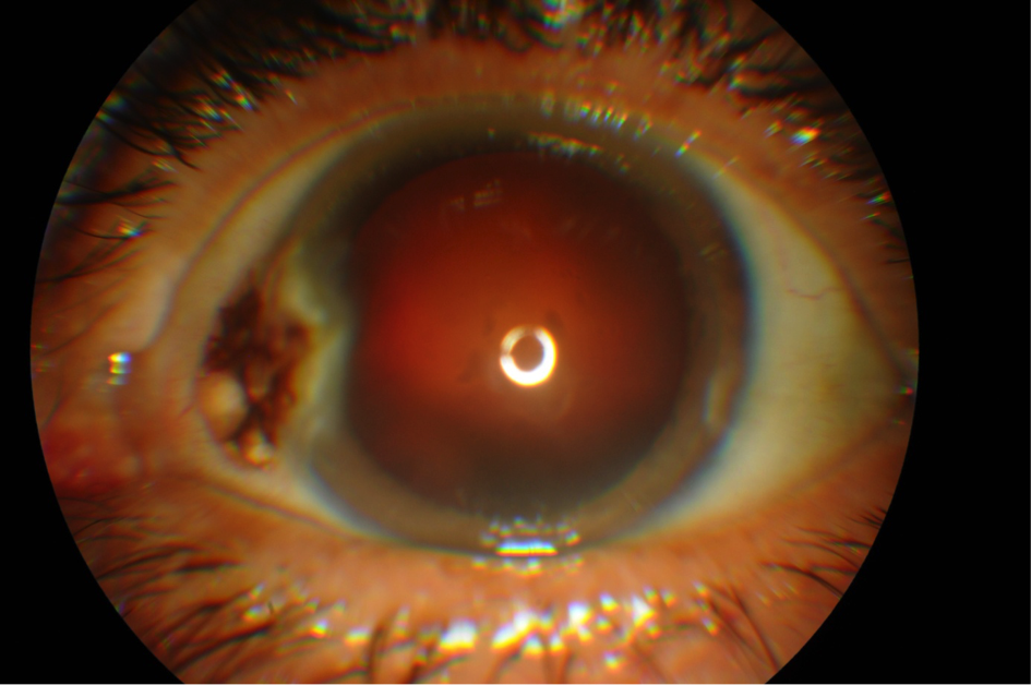 Atypical pterygium revealing a conjunctival melanoma figure 1
