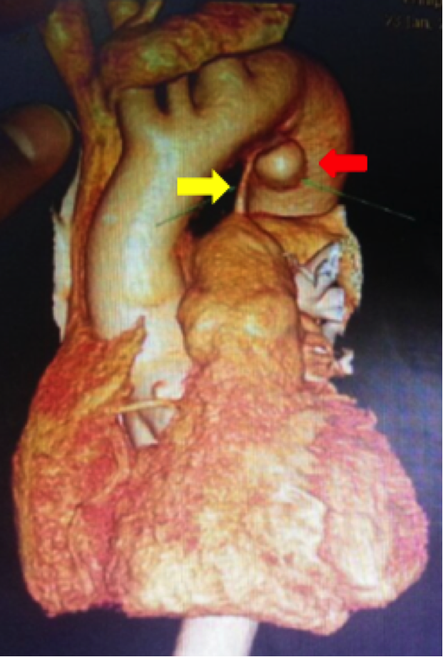 Ductus Arteriosus Aneurysm Presenting as Ortner's Syndrome in an Adult figure 1