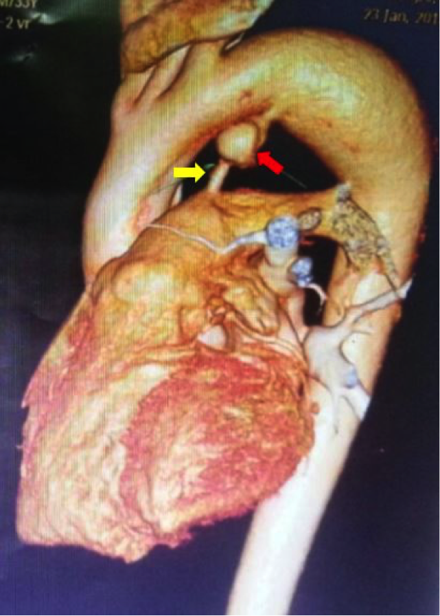 Ductus Arteriosus Aneurysm Presenting as Ortner's Syndrome in an Adult figure 2