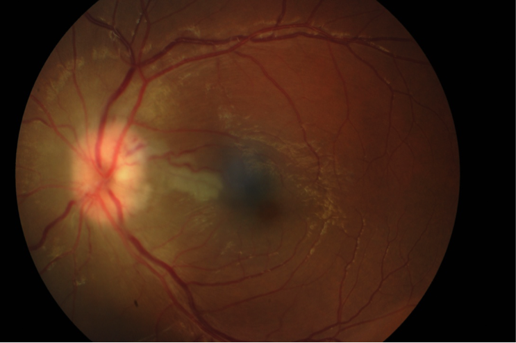 Non-arteritic ischemic optic neuropathy reveals Marchiafava–Micheli disease: a case report figure 2