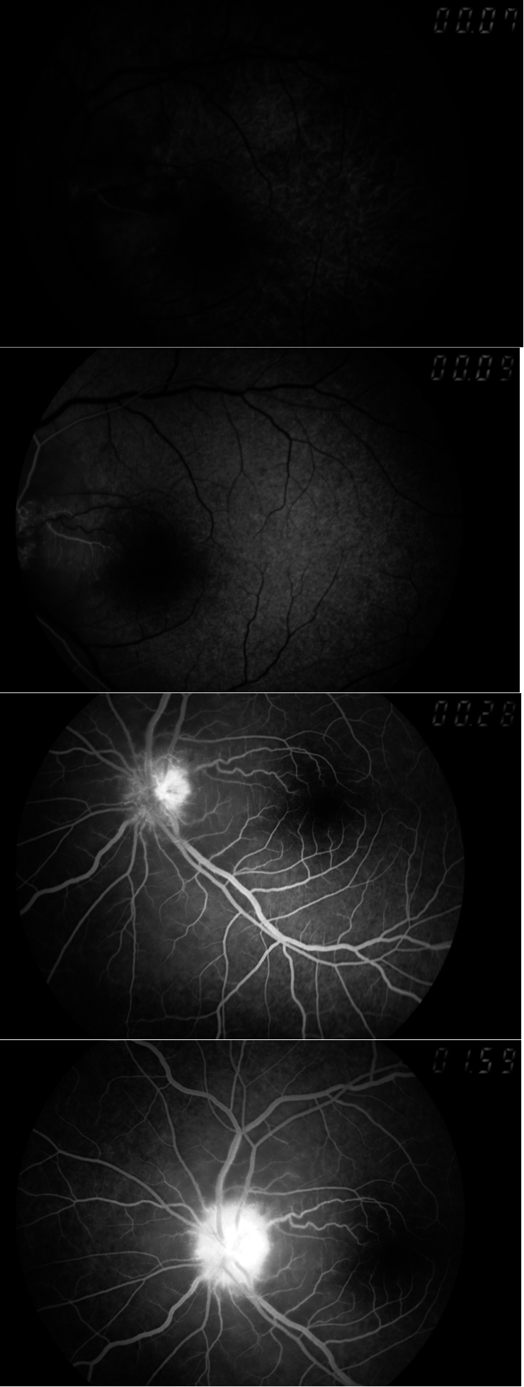 Non-arteritic ischemic optic neuropathy reveals Marchiafava–Micheli disease: a case report figure 3