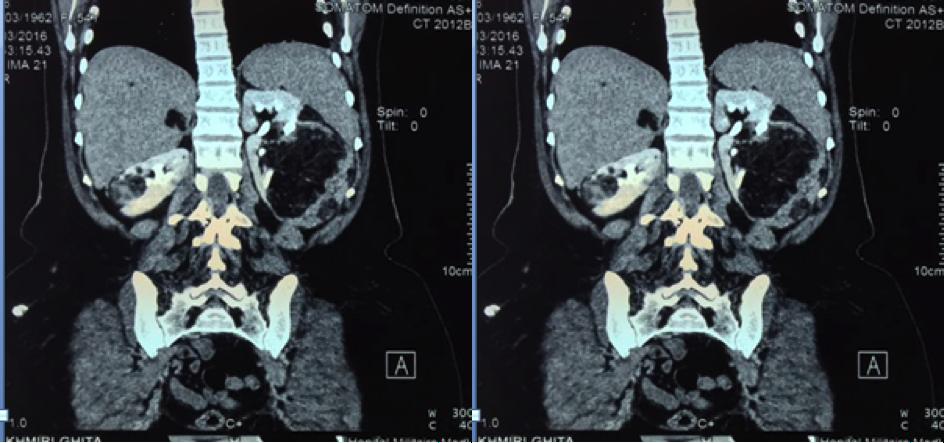 Angiomiolipoma renal bilateral y esclerosis tuberosa de bourneville:  reporte de un caso y revisión de la literatura Figura 1