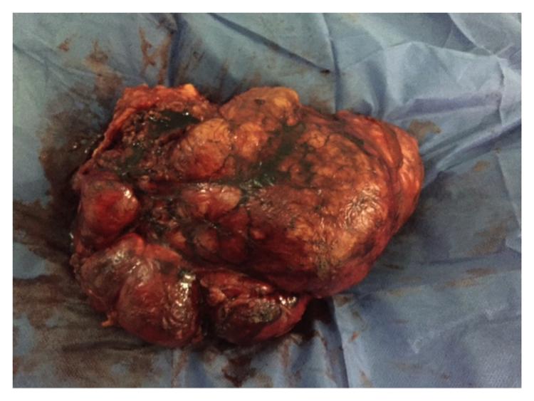Angiomiolipoma renal bilateral y esclerosis tuberosa de bourneville:  reporte de un caso y revisión de la literatura Figura 2