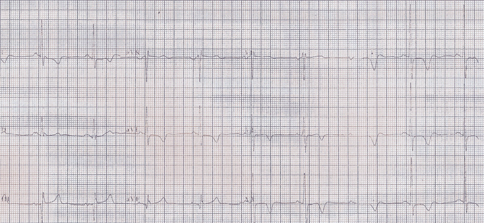Electrocardiographic Changes in a Patient with Left Cerebellar Infarction figure 2