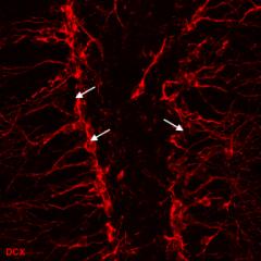 Маркеры нейрональных клеток Рисунок 3