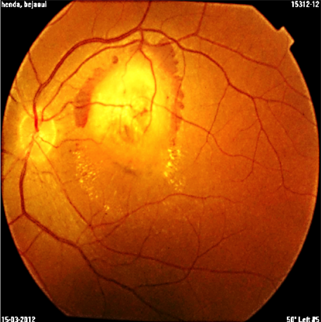 Pitfalls in the diagnosis of choroidal tumors: 3 case reports of choroidal masses figure 1