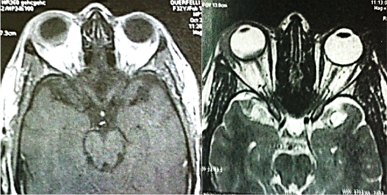 Pitfalls in the diagnosis of choroidal tumors: 3 case reports of choroidal masses figure 10