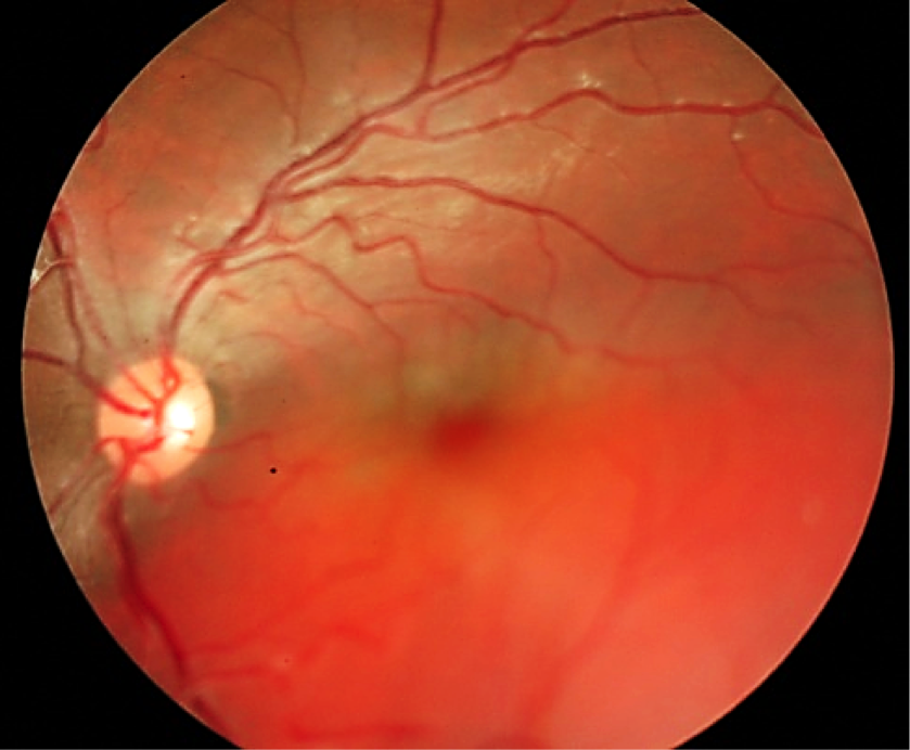 Pitfalls in the diagnosis of choroidal tumors: 3 case reports of choroidal masses figure 12