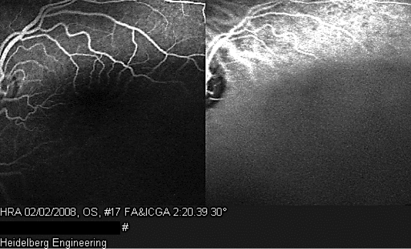 Pitfalls in the diagnosis of choroidal tumors: 3 case reports of choroidal masses figure 13