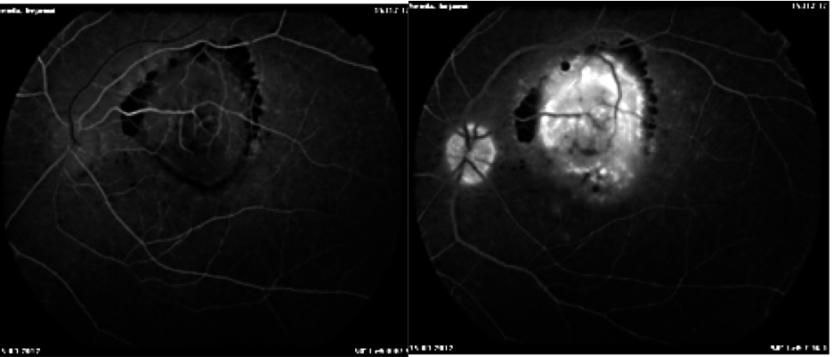 Pitfalls in the diagnosis of choroidal tumors: 3 case reports of choroidal masses figure 2