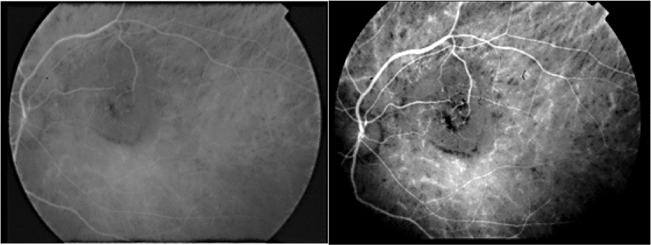 Pitfalls in the diagnosis of choroidal tumors: 3 case reports of choroidal masses figure 4
