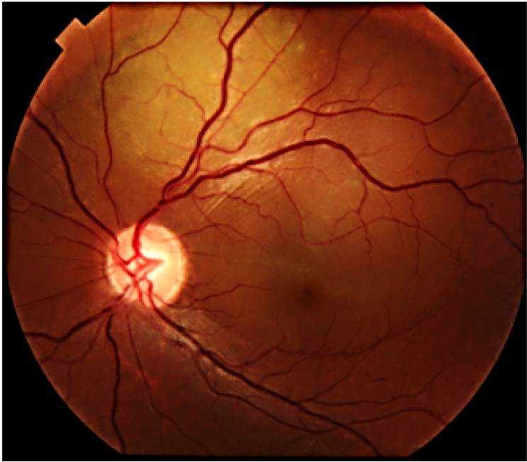 Pitfalls in the diagnosis of choroidal tumors: 3 case reports of choroidal masses figure 6