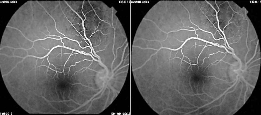 Pitfalls in the diagnosis of choroidal tumors: 3 case reports of choroidal masses figure 7