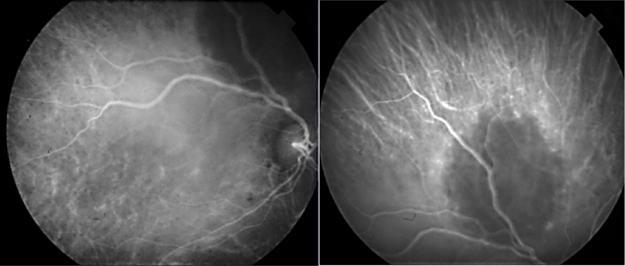 Pitfalls in the diagnosis of choroidal tumors: 3 case reports of choroidal masses figure 8