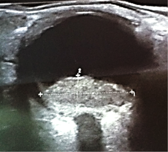 Pitfalls in the diagnosis of choroidal tumors: 3 case reports of choroidal masses figure 9