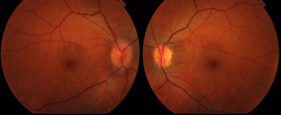 Méningiome de la gaine du nerf optique associé à la maladie de ...
