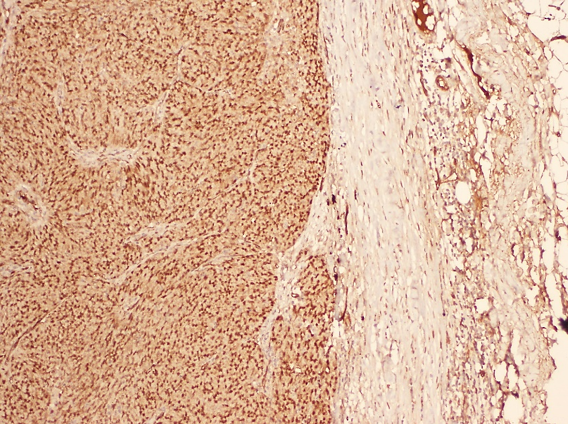 Renal Metastasis From A High Grade Serous Ovarian Carcinoma A Case Report And Literature Review