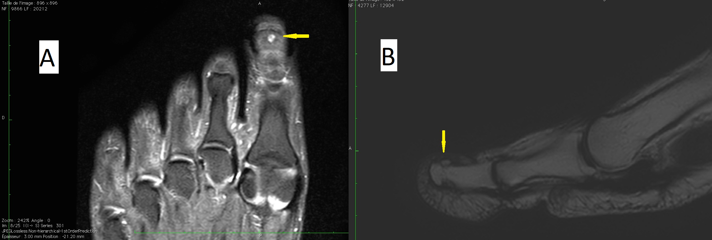 Osteoid Osteoma of the Distal Phalanx of the Hallux figure 2