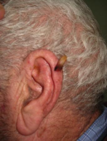 Corne cutan e propos d une localisation au pavillon de for Interieur oreille