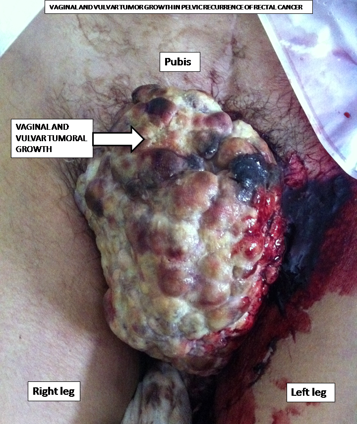 Anal lesions picture