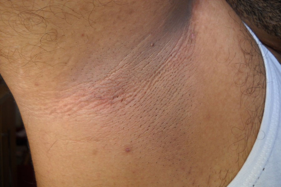 Elastosis Perforans Serpiginosa On The Background With Acanthosis Nigricans Figure 2