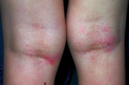 Le traitement non hormonal atopitcheskogo la dermatite