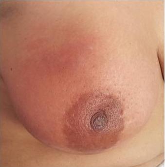 Caractéristiques épidémiologiques, cliniques et moléculaires du cancer du  sein inflammatoire