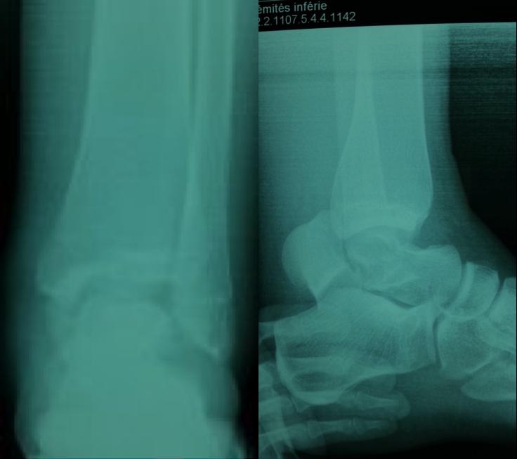 Fracture luxation du talus associée à une compression du ...