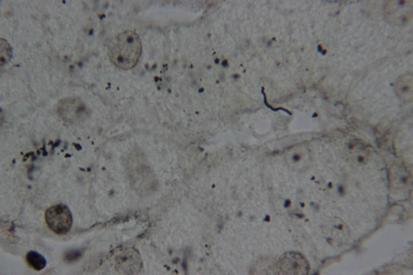 Granulomatous hepatitis associated with chronic Borrelia burgdorferi infection: a case report figure 4